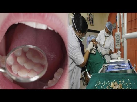 Boy Has 232 Teeth Removed From His Mouth