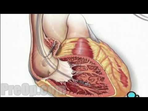 Permanent Pacemaker Implant - Handwash - Wound -  Patient Education - PreOp Videos