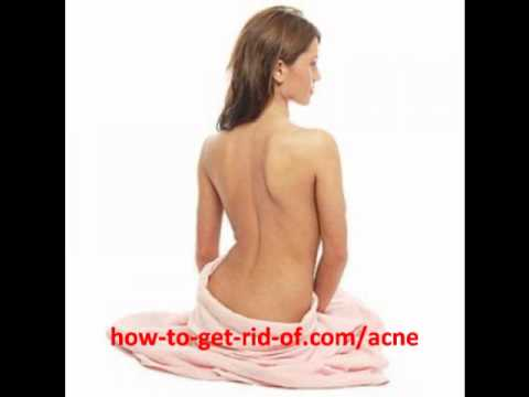 Back Acne Treatment   The Best Back Acne Treatments