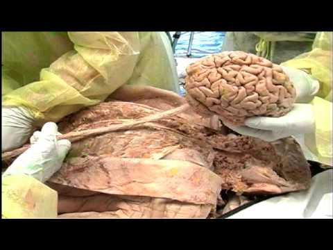 Structure And Function of Brain And Spinal Cord The Brain And Spinal Cord