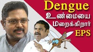 TTV Dinakaran | aiadmk government hiding the facts on dengue