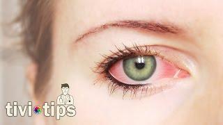 Göz iltihabı nasıl oluşur, belirtileri nelerdir?