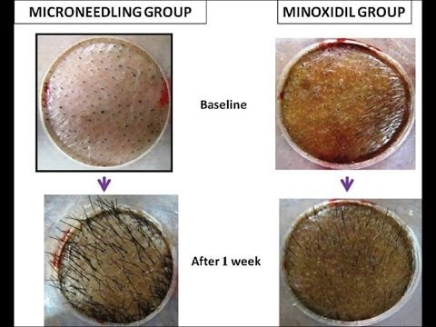 Scientific Proof Of Cure For Male Female Pattern Baldness