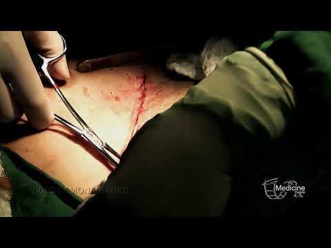 Cirurgia ao vivo (Histerectomia e Miomectomia) - Ginecologia