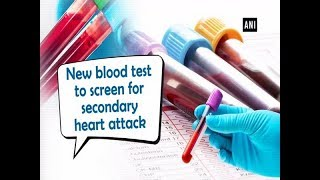 New blood test to screen for secondary heart attack - #Health News