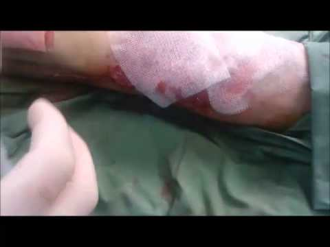 Skin Grafted to Fabric For Skin Graft Take