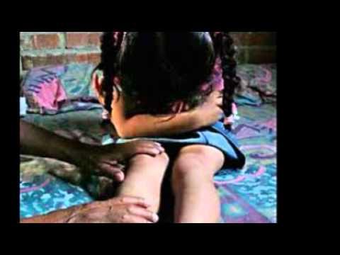 El Abuso Sexual Infantil