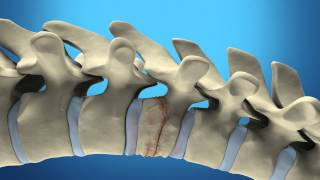Bone printing for the spine