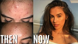 HOW TO REALLY GET RID OF ACNE IN ONE WEEK (WORKS!)