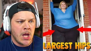 Woman Wants The World's Largest Hips - Reaction