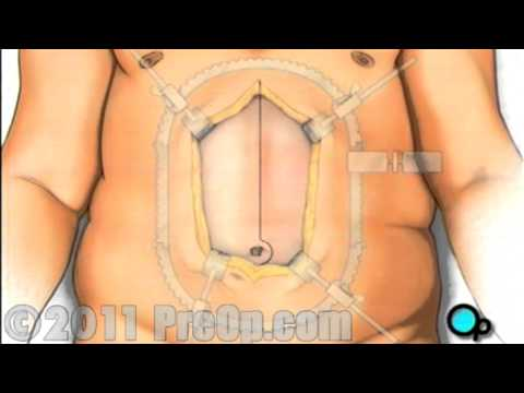 Gastric Bypass Open Weight Loss Surgery  PreOp® Patient Education HD