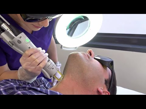 Neck Laser Hair Removal for Men