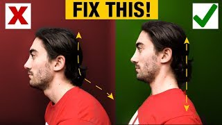 How to Fix Forward Head | Slumped Posture (PERMANENTLY!)
