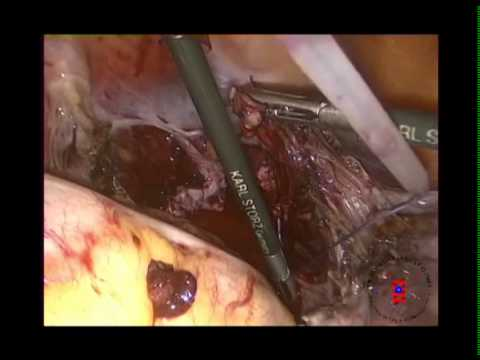 Histerectomía Cirugia Realizada por el Dr. Renato Venegas