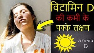 विटामिन D की कमी के 7 लक्षण  😱   | Symptoms Of Vitamin D Deficiency