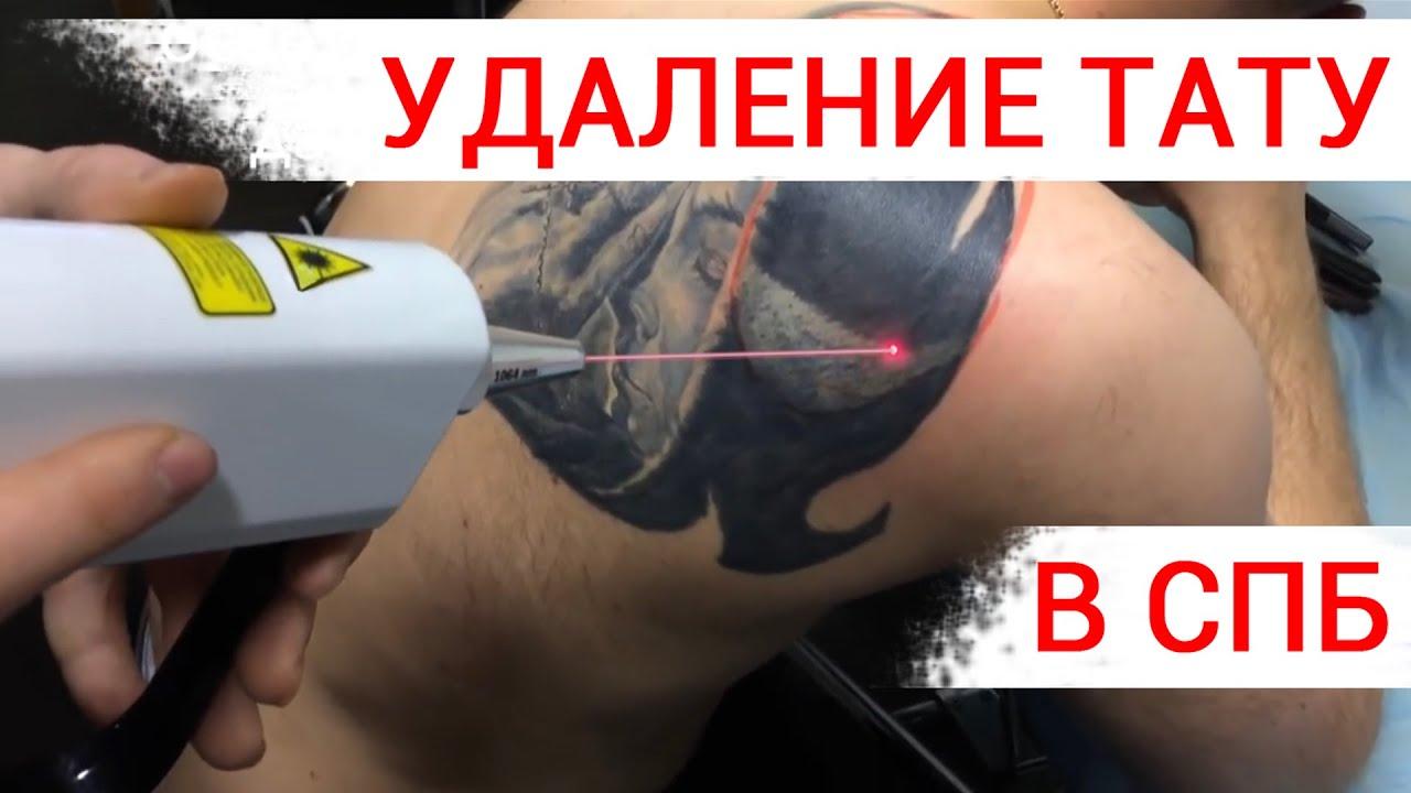 Лазер для удаления татуировок своими руками 53