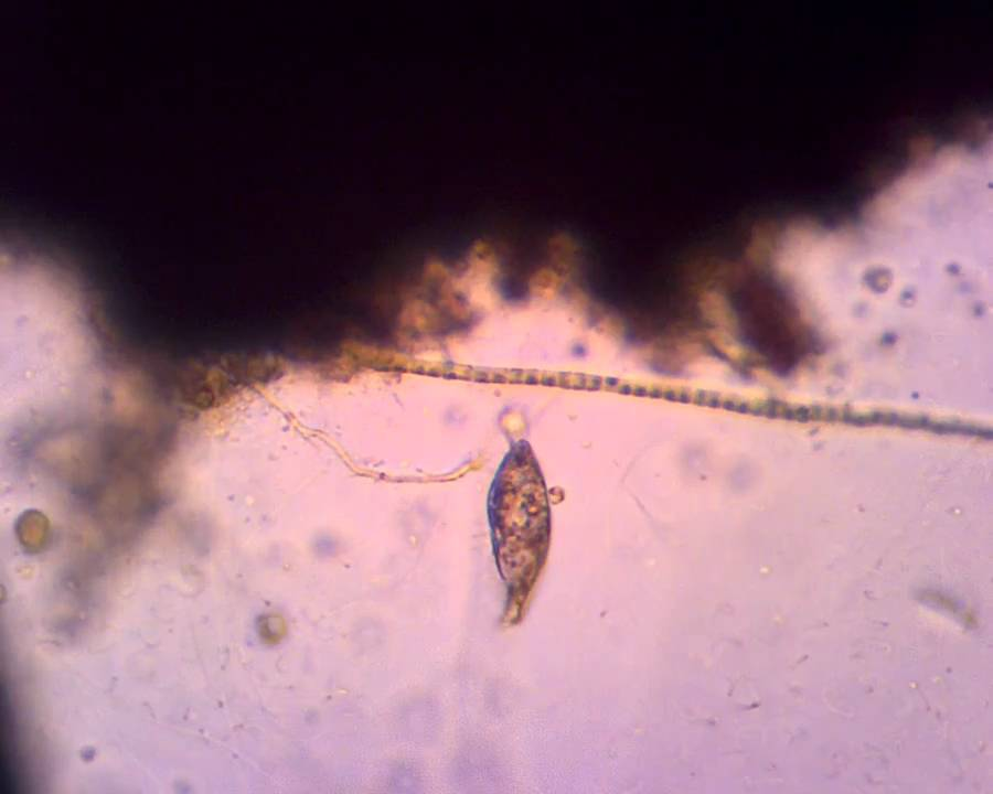 paramecium movement assignment bes108 Free essay: paramecium movement assignment: answer the following questions and hand in at the beginning of the next lab 1 describe how paramecium moves in.