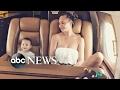 Chrissy Teigen opens up about postpartum depression MP3