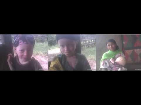 Albinism Disease in jimma