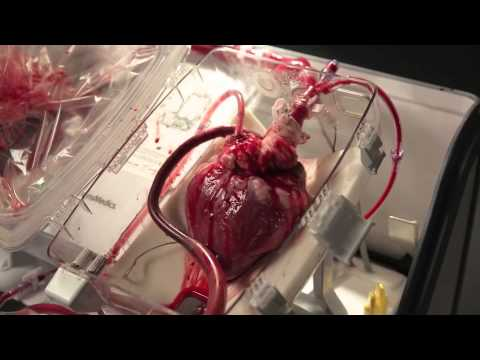 Fascinating video of a donors heart being kept beating.