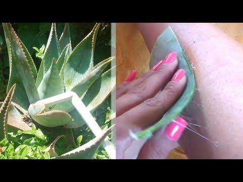ALOE VERA: Rimedio Naturale contro smagliature, macchie, acne, cicatrici, scottature !!!