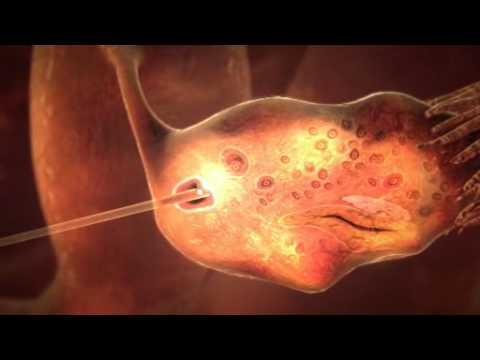 IVF Darstellung DEUTSCH