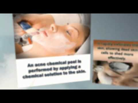 Chemical Peel Acne Treatment