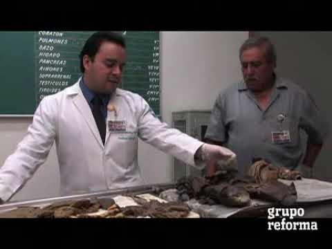Bajan autopsias clínicas y dejan hueco en salud