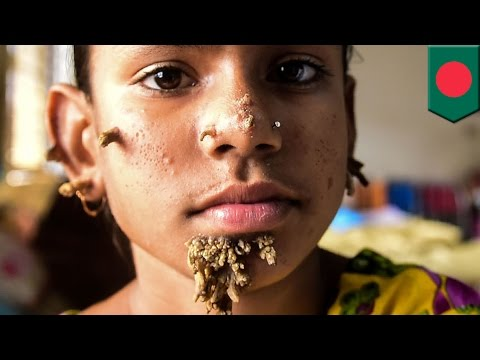 Wanita Pertama Dengan Sindrom Manusia Pohon - Tomonews