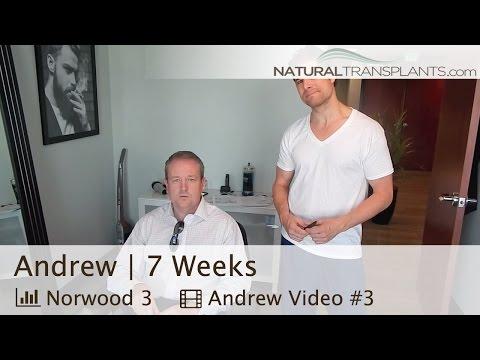 7 Week Hair Loss Surgery Post-Op Check-Up - Natural Hair Transplant - Orlando, Florida (Andrew)