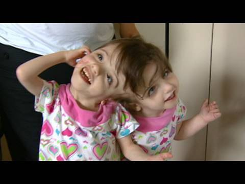 Conjoined Twins: Twin Girls, A Medical Wonder
