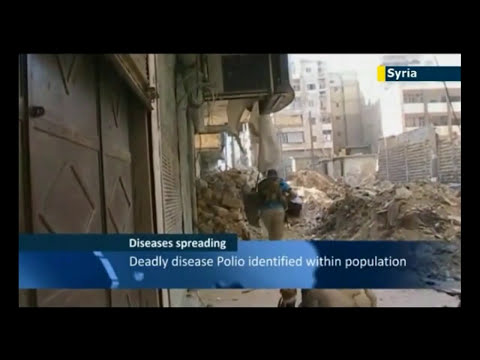Syria War Flesh Eating Disease Flesh Shall Consume Away Damascus A Ruinous Heap!!