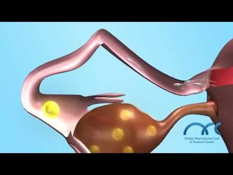 3D- Human Natural Fertilization.Best IVF & Fertility Hospitals Chennai India- ARC Research Centre