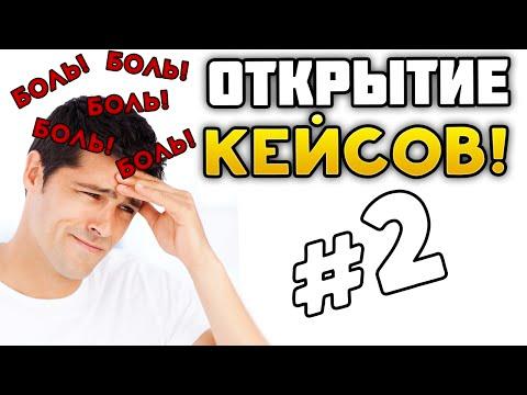 ОТКРЫТИЕ КЕЙСОВ CS GO #2 - БОЛЬ