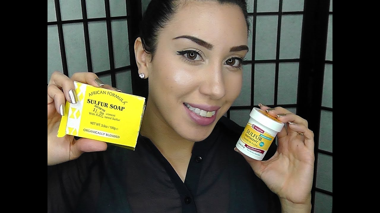 Clear Acne Fast Using Sulfur Youtube