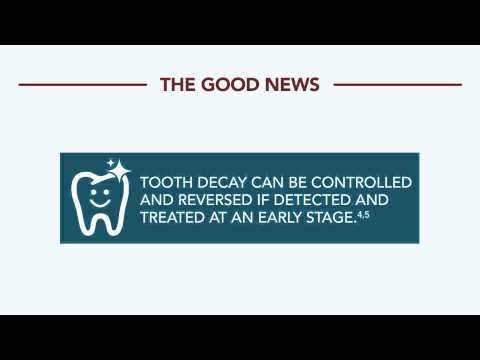 Survey on impact of tooth decay - Europeans are not smiling