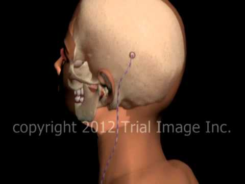 Hydrocephalus shunt video - Trial Image Inc. Animation by Cal Shipley, M.D.