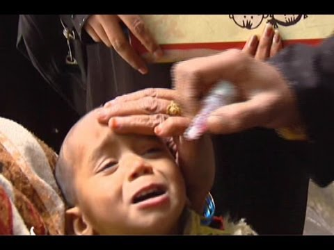 Polio almost eradicated in India
