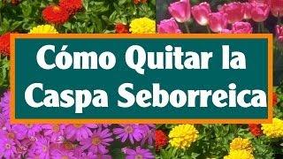 5 Remedios Caseros para la Caspa y Dermatitis Seborreica.