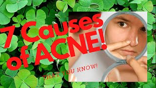 ????????7 Main Causes Of Acne That You Know!