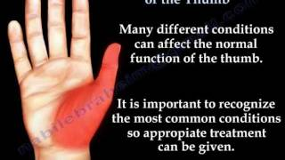 Common Conditions Of The Thumb - Everything You Need To Know - Dr. Nabil Ebraheim