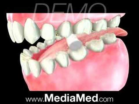 Root Canal-Dental
