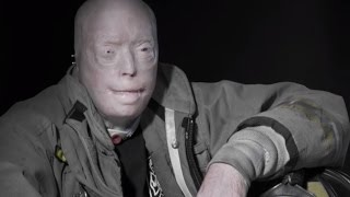 Firefighter With Successful Face Transplant Breaks His Silence One Year Later