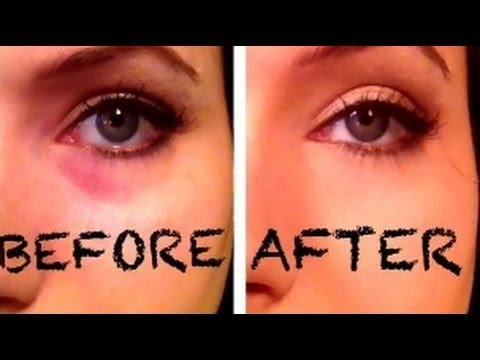 Bye! Bye! Dark Eye Circles/Bags by Combining 2 Drugstore Products