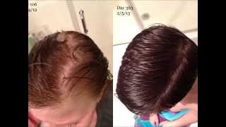 How To Stop Hair Loss And Regrow New Hair Naturally - How To Tell What Type Of Hair Loss You Have