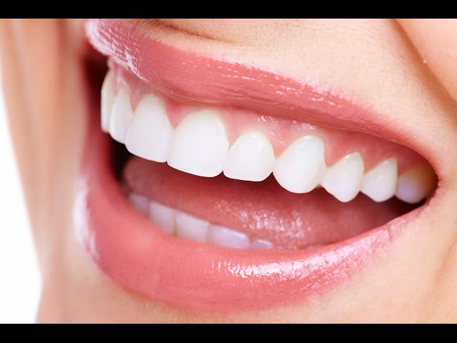How to straighten teeth without braces