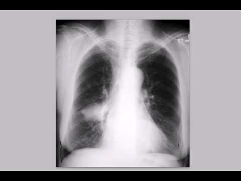 Chest x-ray interpretation --Radiology basics