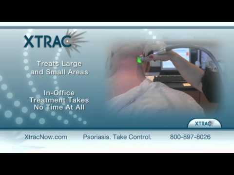 Photomedex Xtrac Laser Treatment For Psoriasis