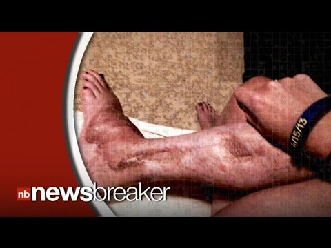 Boston Marathon Bombing Victim Has Leg Amputated