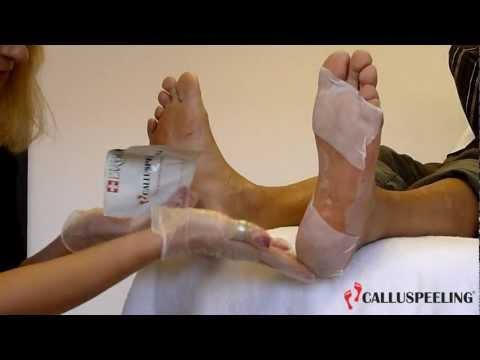 MAVEX: CALLUSPEELING. THE ORIGINAL SWISS FOOT TREATMENT